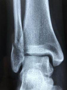 Diagnóstico de la osteoporosis