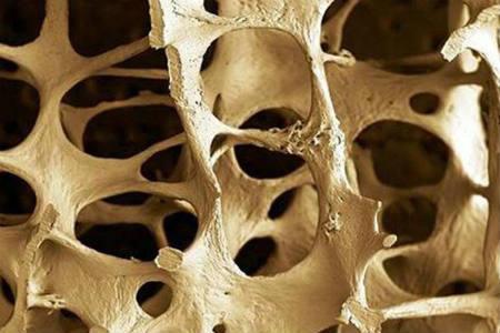 Síntamos de la osteoporosis